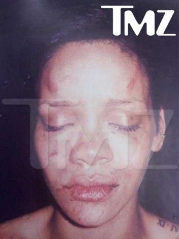 Rihanna Bruises